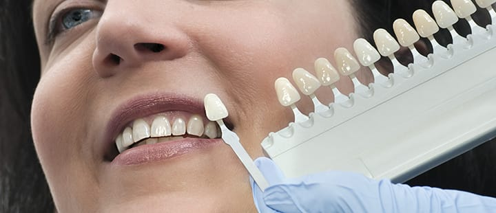 Obtain The Best Results With Restorative Dentistry